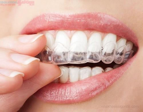 Chỉnh nha niềng răng không mắc cài invisalign