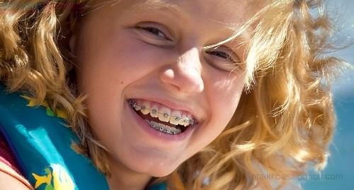 Chi phí chỉnh nha niềng răng thẩm mỹ mất bao nhiêu tiền?