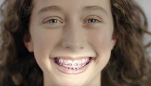 Phương pháp niềng răng với những mắc cài