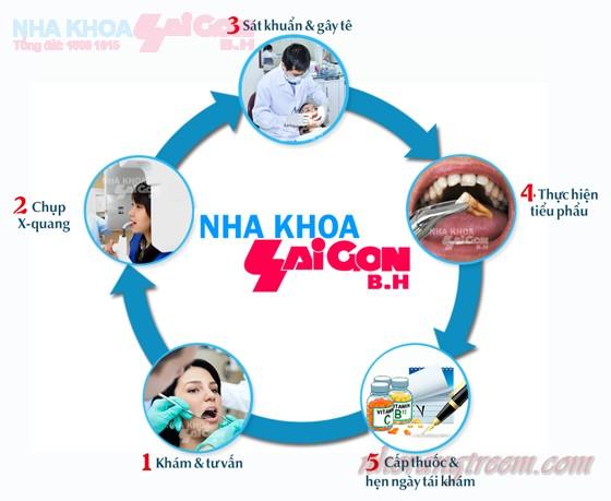 Quy trình nhổ răng tại nha khoa Sài Gòn B.H
