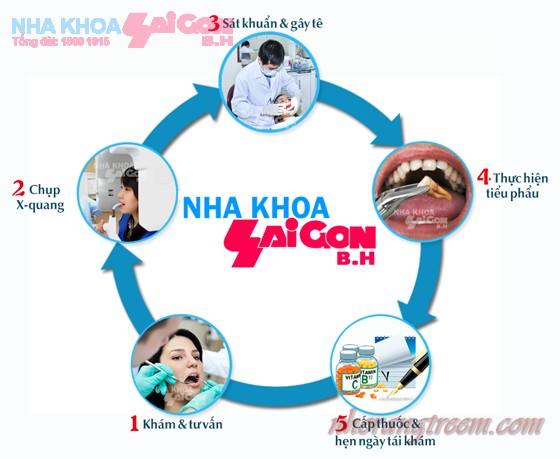 Quy trình nhổ răng khôn tại nha khoa Sài Gòn B.H