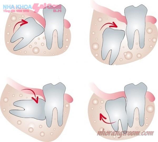 Nhổ răng khôn bằng máy phẫu thuật siêu âm Piezotome