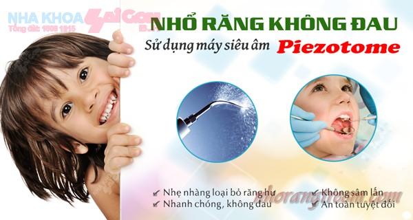 Nhổ răng sữa cho trẻ em an toàn và không đau