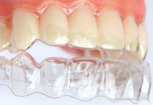 Công nghệ niềng răng không mắc cài invisalign tiên tiến