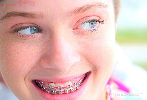 niềng răng mắc cài kim loại cổ điển
