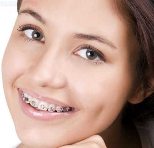 Thời gian chỉnh nha niềng răng là trong bao lâu?