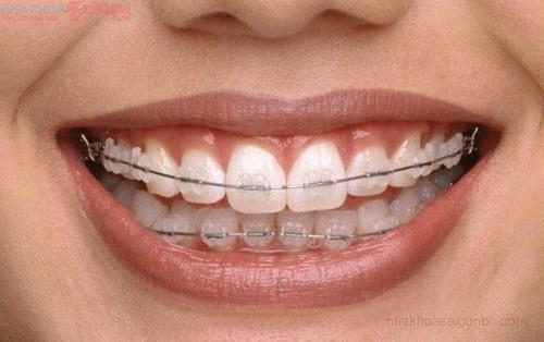 Thẩm mỹ với chỉnh nha niềng răng mắc cài sứ dây trong
