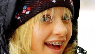 Những lợi ích của việc chỉnh nha niềng răng thẩm mỹ