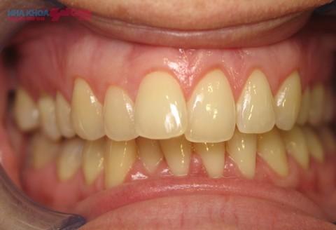 răng bị vàng cần được tẩy trắng