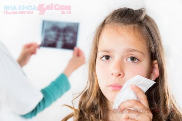 Bí quyết phòng ngừa và chữa trị sâu răng hiệu quả ở trẻ em