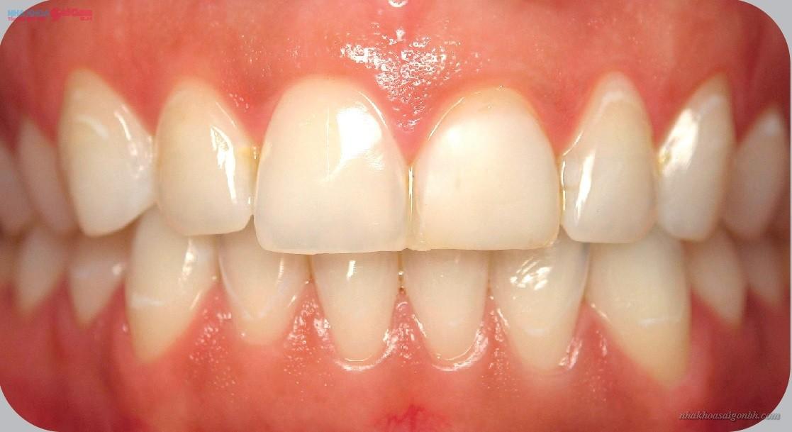 răng bị vàng ố cần tẩy trắng răng