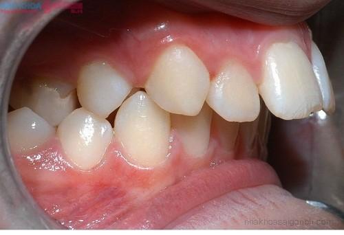 Niềng răng có điều trị hô do xương hàm được không?