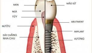 Chi phí trồng răng implant giá bao nhiêu tiền?