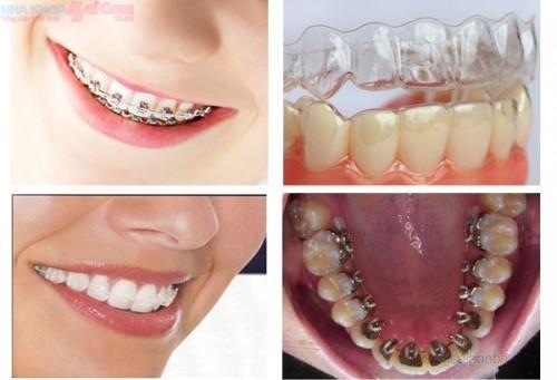 các phương pháp chỉnh nha niềng răng