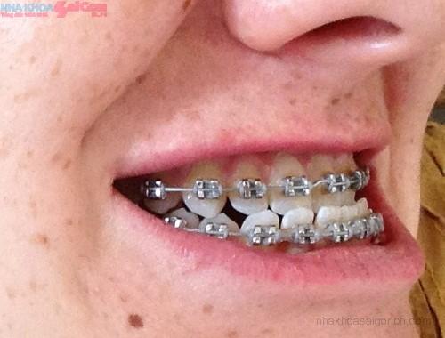 Chỉnh nha niềng răng hô hàm dưới