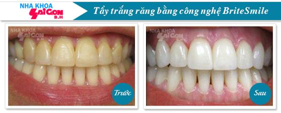 kết quả sau khi tẩy trắng răng