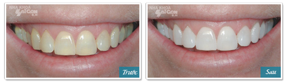 kết quả tẩy trắng răng 1