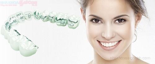 Tự tin hơn với phương pháp chỉnh nha niềng răng mặt trong