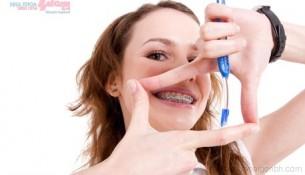 Vật dụng cần thiết để vệ sinh răng miệng khi niềng răng