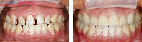 Trước và sau khi bọc răng sứ thẩm mỹ