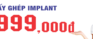 Trồng răng implant chì với 9,999,000đ