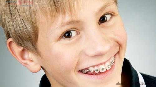 Chỉnh nha niềng răng sớm mang lại lợi ích gì