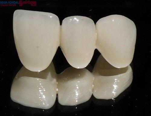 Bọc răng sứ không kim loại