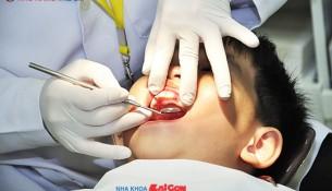 khám răng định kỳ ở trẻ