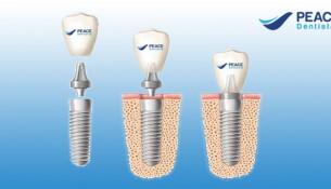 các giai đoạn cấy ghép implant