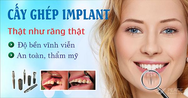 cấy ghép implant - giải pháp hoàn hảo cho người mất răng