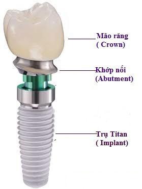 cau-tao-rang-implant-1