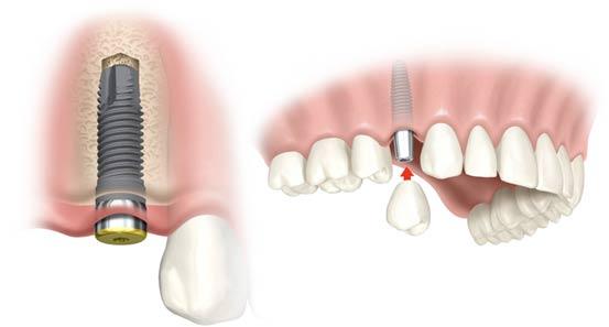 quy-trinh-trong-rang-implant