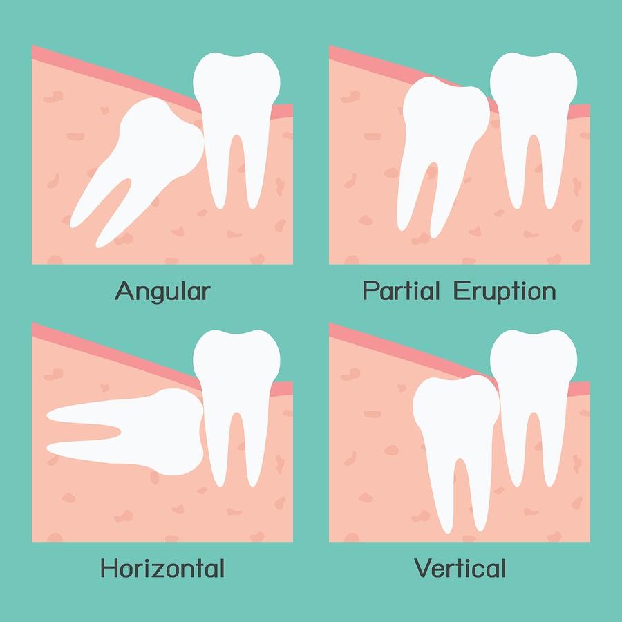 các kiểu mọc của răng khôn