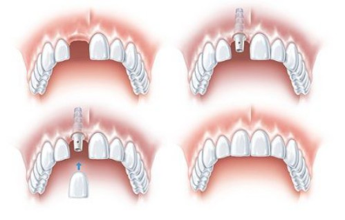 giai-phap-trong-rang-implant