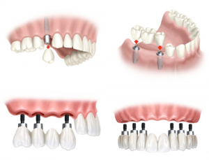 phuong-phap-trong-rang-implant