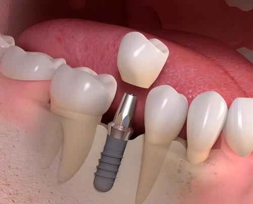 rang-su-implant-bao-nhieu-tien