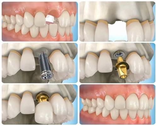 giai-doan-trong-rang-implant
