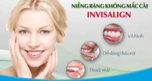 79_nieng-rang-invisalign1