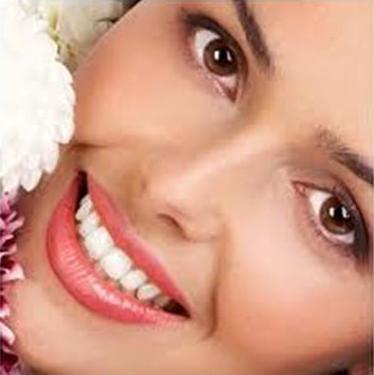 2 lợi ích cho thấy bạn nên bọc răng sứ