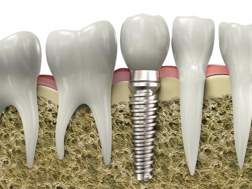 giai-dap-thac-mac-trong-rang-implant-co-nguy-hiem-khong-1