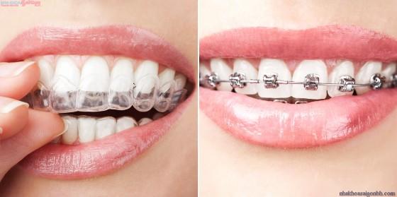 Khi nào thì niềng răng không hiệu quả