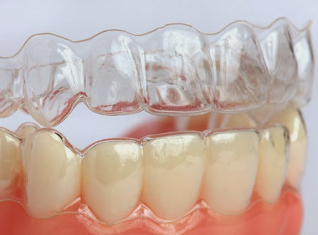 Niềng răng Invisalign phải sử dụng nhiều khay niềng -1