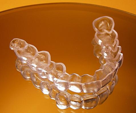Niềng răng Invisalign phải sử dụng nhiều khay niềng