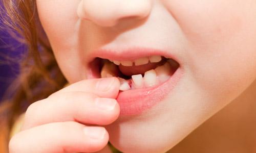 Phương pháp làm khít răng thưa hiệu quả