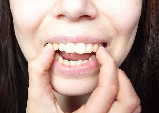 Răng bị hô thì nên điều trị ra sao