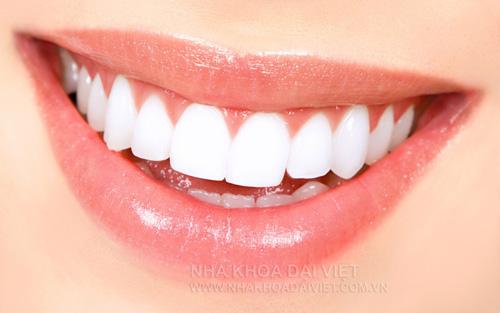Những điều cần lưu ý sau khi bọc răng sứ