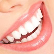 Nụ cười xinh khi bọc răng sứ sườn Titan