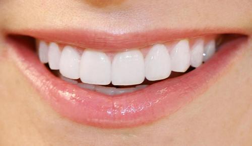 Phương pháp và cách xử lý răng bọc sứ bị lung lay