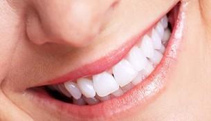 Bọc răng sứ Titan có bị đen vùng chân răng không?