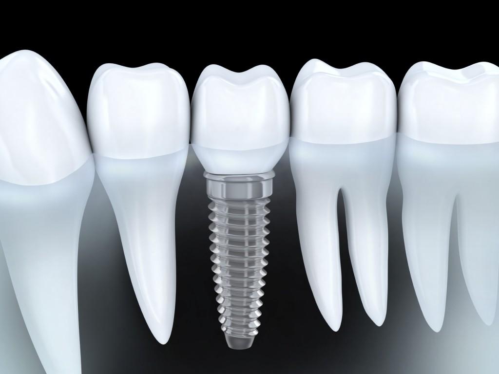implant-1024x768